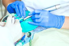 Närbild av ett tandläkarearbete royaltyfri foto