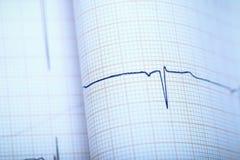 Närbild av hjärtakomplexet på ECG-papper Royaltyfria Foton