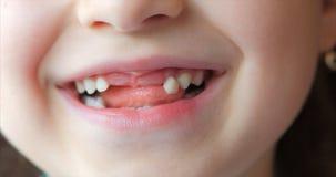 Närbild av lite flickas leende, mjölktänder Barnet skakar hans tunga mjölkar tanden arkivfilmer