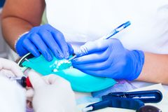 Närbild av tänder för en tandläkarefest royaltyfri bild