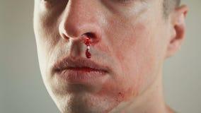 Närbild av verklig näsblödning för man stock video