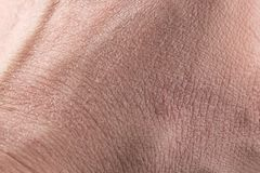 Närbild för torr hud royaltyfri fotografi