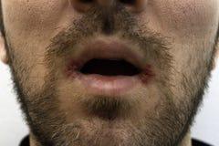 Närbild på en man med muntlig herpes två (herpessimplex) på hans mun royaltyfri foto