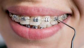 Närbild som skjutas av tänder med hänglsen Kvinnlig patient med metallkonsoler på det tand- kontoret orthodontic behandling arkivbilder