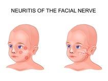 Névrite de nerf facial dans un enfant illustration stock