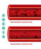 Nível da anemia de glóbulos ilustração do vetor
