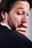 Na mężczyzna sholder Dandruff zagadnienie Zdjęcia Stock