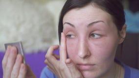 Nabrzmiałość dziewczyny twarz, alergiczna reakcja zbiory wideo