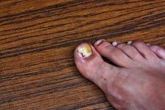 Nabrzmiały wrośnięty palec u nogi Zdjęcie Royalty Free