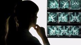 Nadenkende arts die bloedvatenröntgenstraal bekijken, gezondheidszorg, neurochirurg royalty-vrije stock foto