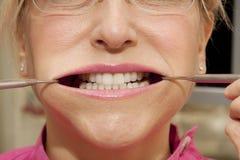 Nadużyty usta obrazy stock
