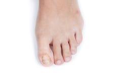 Nagelpilz auf weiblichem Finger stockbilder