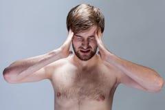 Nagi mężczyzna z silną migreną Zdjęcia Royalty Free