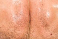 Nahaufnahme der Haut auf Mannesrückseite Stockfotos