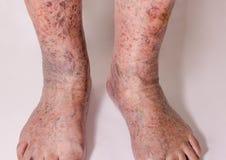 Nahaufnahme der Haut mit Krampfadern Stockfotografie