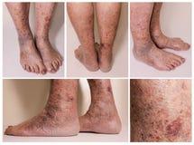 Nahaufnahme der Haut mit Krampfadern Stockfoto