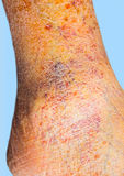 Nahaufnahme der Haut mit Krampfadern Stockfotos