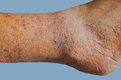 Nahaufnahme der Haut mit Krampfadern Stockbild