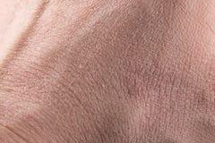 Nahaufnahme der trockenen Haut lizenzfreie stockfotografie