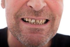 Nahaufnahme des Munds eines Mannes, der Zähne zeigt Stockbild