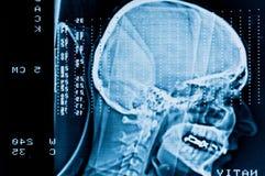 Nahaufnahme eines CT Stockfotografie