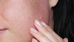 Nahaufnahme eines weiblichen Gesichtes Das Mädchen wendet Make-up an: eine Creme, ein Serum oder eine Heilung für Akne Problemhau stock video footage
