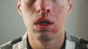 Nahaufnahme Mann-des wirklichen Nasen-Blutens stock video footage