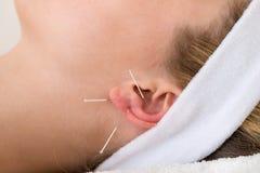 Nahaufnahme von Akupunkturnadeln auf einem Ohr. lizenzfreies stockfoto