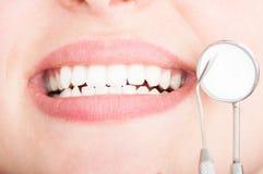Nahaufnahme von schönen weißen Zähnen mit Zahnarztwerkzeugen Stockbilder
