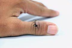 Nahaufnahme von verletztem und auf Daumenfinger genäht stockfotografie