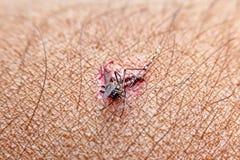 Nahaufnahme zertrümmerten Moskito Aedes aegypti saugenden Bluts zu den Di Lizenzfreie Stockbilder
