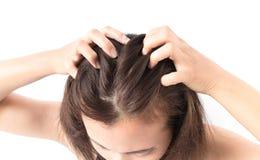 Nahaufnahmefrauen-Handjuckende Kopfhaut, Haarpflege stockbild