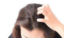 Nahaufnahmefrauen-Handjuckende Kopfhaut, Haarpflegekonzept lizenzfreie stockbilder