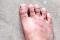 Nahaufnahmehaut athlete's Fuß-Psoriasispilz, Hong- Kongfuß, Lizenzfreie Stockfotos