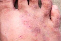 Nahaufnahmehaut athlete's Fuß-Psoriasispilz, Hong- Kongfuß, Stockfoto