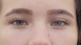 Nahaufnahmeporträt des schönen jungen europäischen Mädchens mit Problemhaut, -Pickeln und -akne auf ihrem Gesicht stock video footage