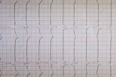 Nahe hohe Ansicht eines Elektrokardiogrammpapiers, Grafik stockbild