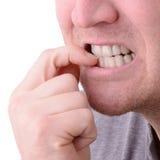 Nail biting. A macro view of biting nails stock photos