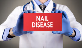 Nail disease stock photo