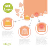 Nail fungus infection. Vector. Cartoon Isolated Flat royalty free illustration