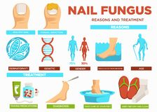 Nail fungus reasons and treatment poster with text vector. Healthy and fungal infection, dermatophyte and genetic problems, gender and aging reasons. Take royalty free illustration