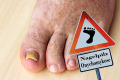 Nail fungus on the toenails and skin spots. Pathological changes in the feet - nail fungus on the toenails and skin spots stock images