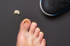 Nail injury. Consequences of wrong sized sport shoe Royalty Free Stock Photos