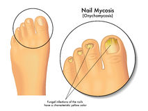 Nail mycosis. Medical illustration of the symptoms of nail mycosis Royalty Free Stock Photo