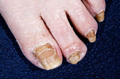 Nails affected human foot fungus, coarsely. The foot of an old man with diseased nail fungus and dry skin stock image