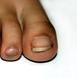 Nails on the feet, dirty. Ingrown toenails. Black dirty fingernails. Royalty Free Stock Images