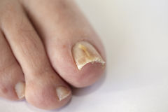 Nails with fungal infection. Foot with fungal toe nail infection royalty free stock photo
