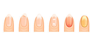 The nails healthy and the sick Royalty Free Stock Photography