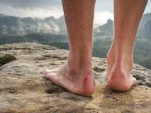Naked foot with painful Heel wound in nature. Man feet stock photos