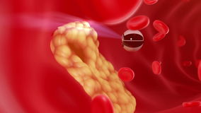 Nanobot finds and removes forming cholesterol plaque stock footage